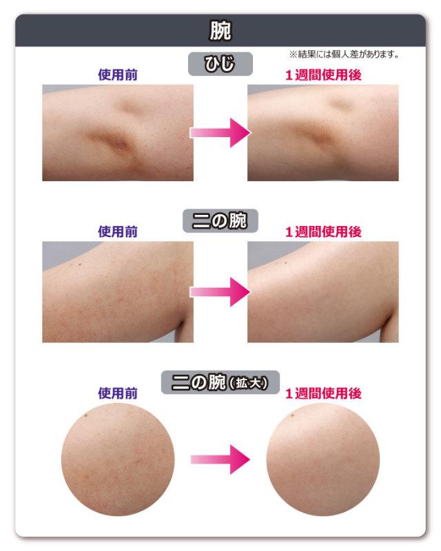 肌磨きミトン 比較2