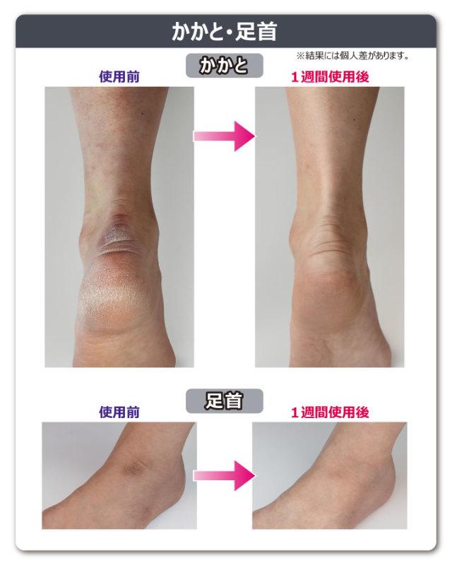 肌磨きミトン 比較3